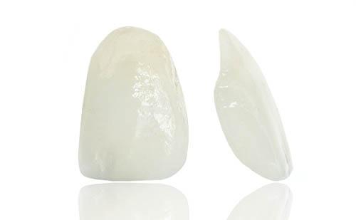 Fabrica de Carillas Dentales Fijas