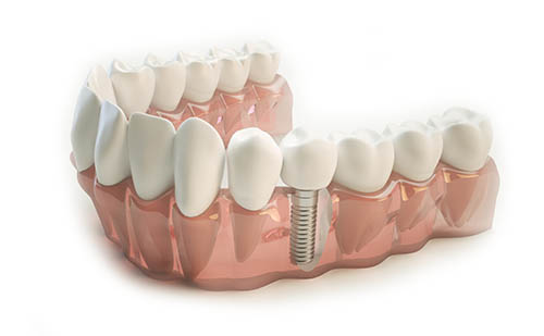 Fabricación de Corona sobre implantes dentales