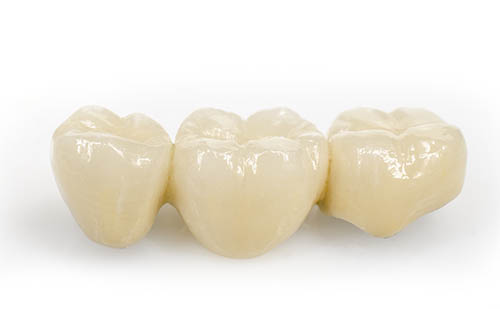 Fábrica de Coronas y Puentes Dentales Fijos