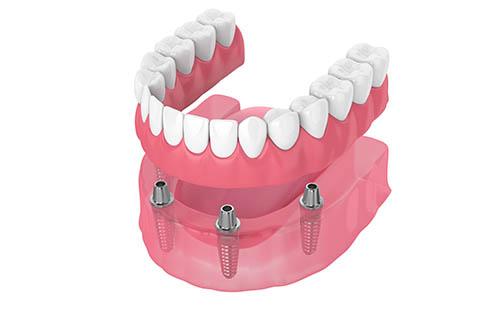 Fabricación de prótesis fijas híbridas sobre implantes dentales