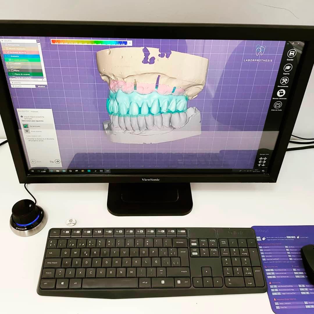 Fabricación de prótesis con tecnología CAD CAM